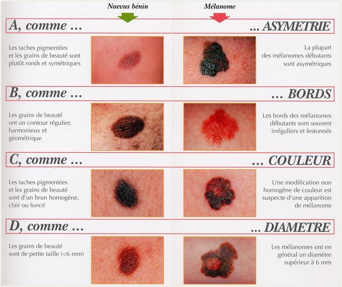 Photos du cancer de la peau du visage