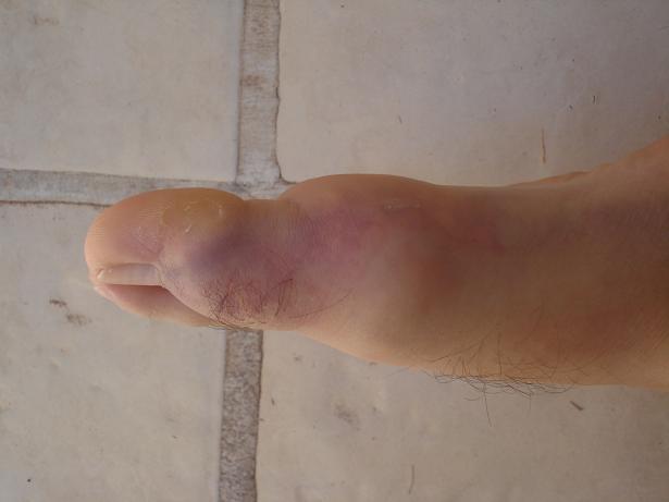 El hongo de las uñas en los pies el tratamiento por la esencia