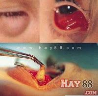 Có ấu trùng sống trong mắt do đeo kính áp tròng