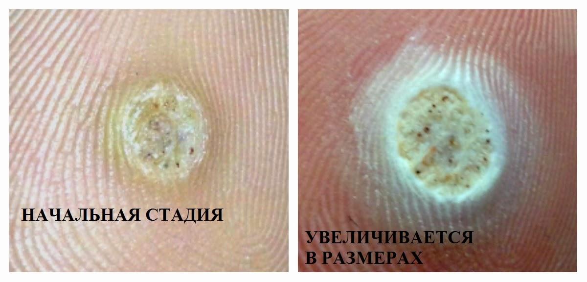 Вирус папилломы у женщин симптомы и лечение