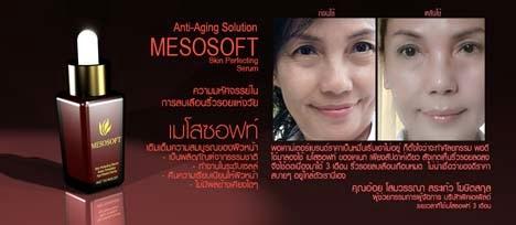 Mesosoft