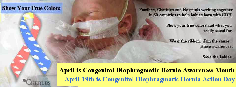 April is CDH Awareness Month - April 19th is Congenital Diaphragmatic Hernia Action Day
