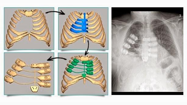 Tecnicos Radiologos: Implante de prótesis de esternón, de impresión 3D