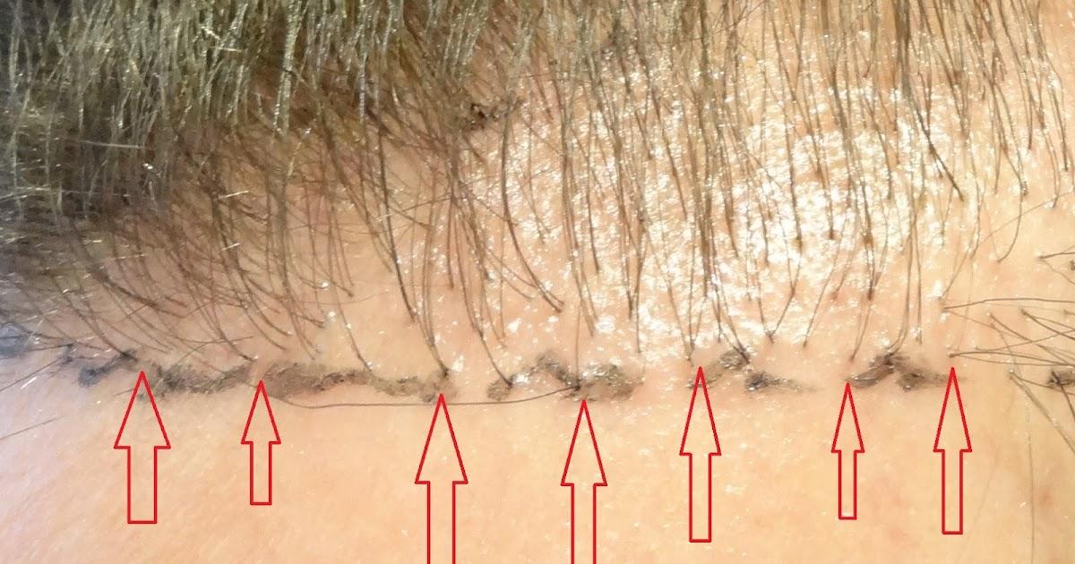 Repairing A Failed Hair Transplant