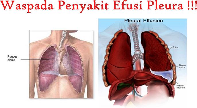 Obat Tradisional Efusi Pleura