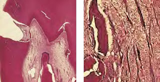 Internal Mineralization: Histology