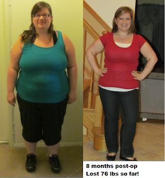 8 Months post-op
