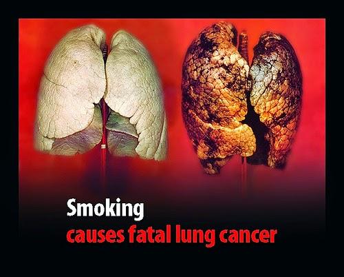 Image Pengobatan Herbal Kanker Paru-paru