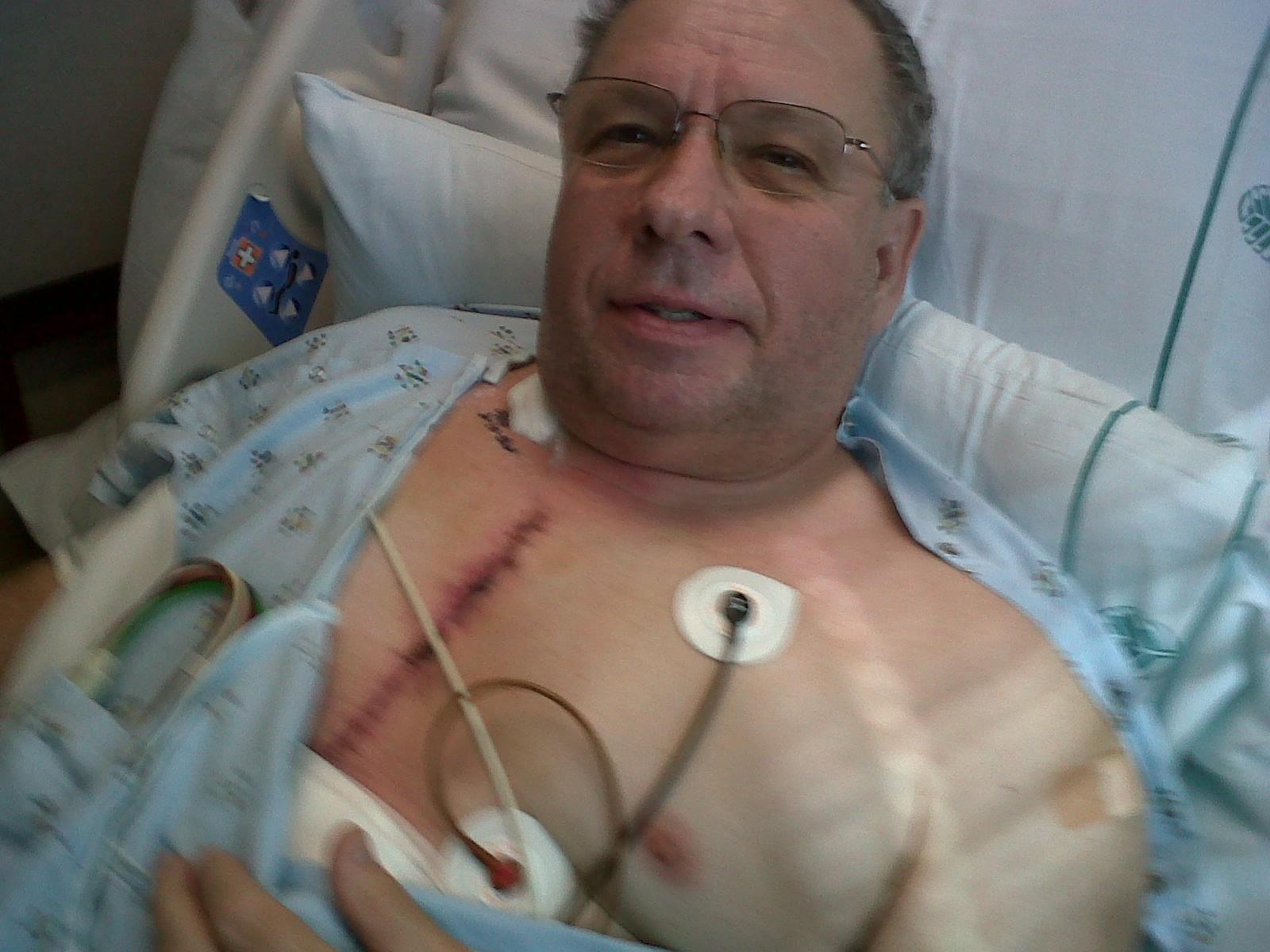 Open heart surgery scar