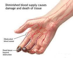 inflammation of blood vessel