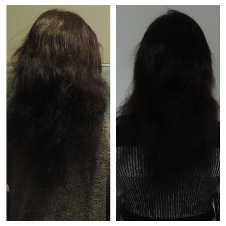shampoo til meget tørt hår