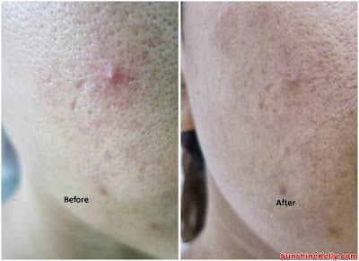 skincare, eucerin, pimples oily combination skin, review, before and after