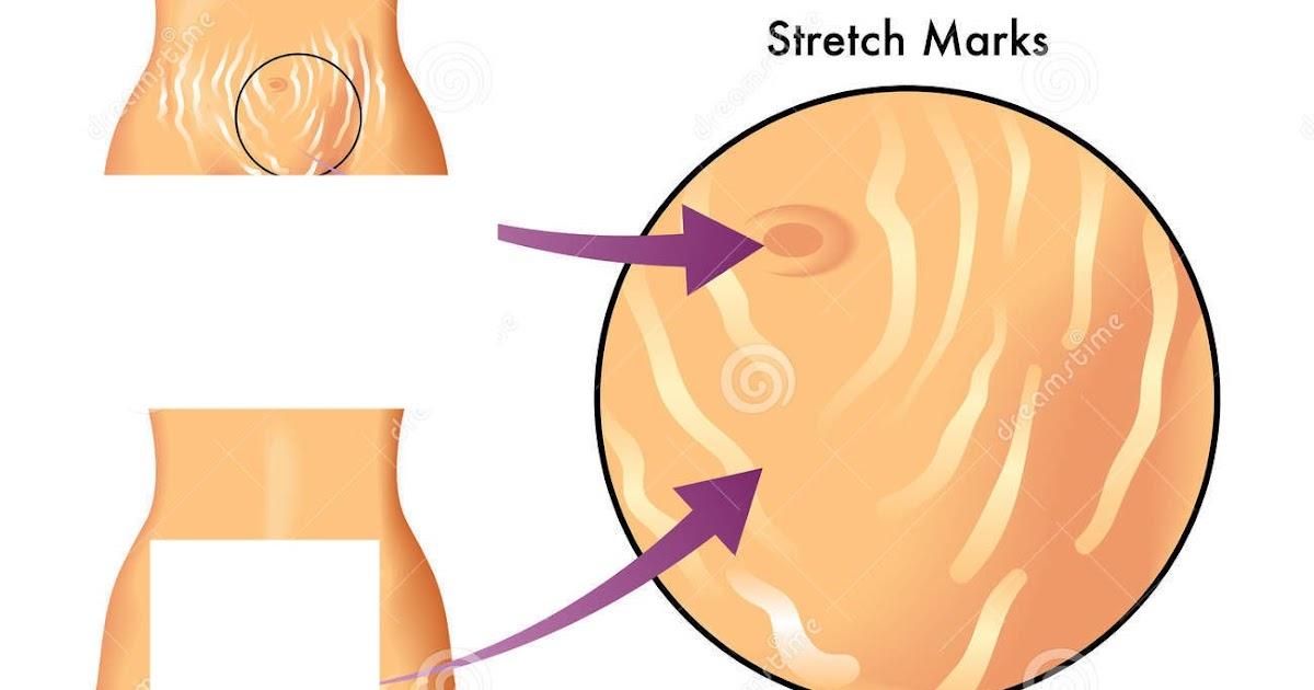 Perbedaan Selulit dan Stretch Mark