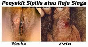 penampakan penyakit sipilis