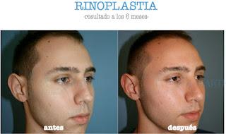 rinoplastia_operacion_nariz_cirujano_plastico_madrid