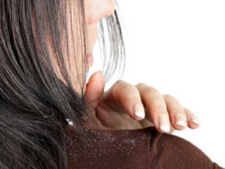 Faktor Utama Penyebab Ketombe Pada Rambut