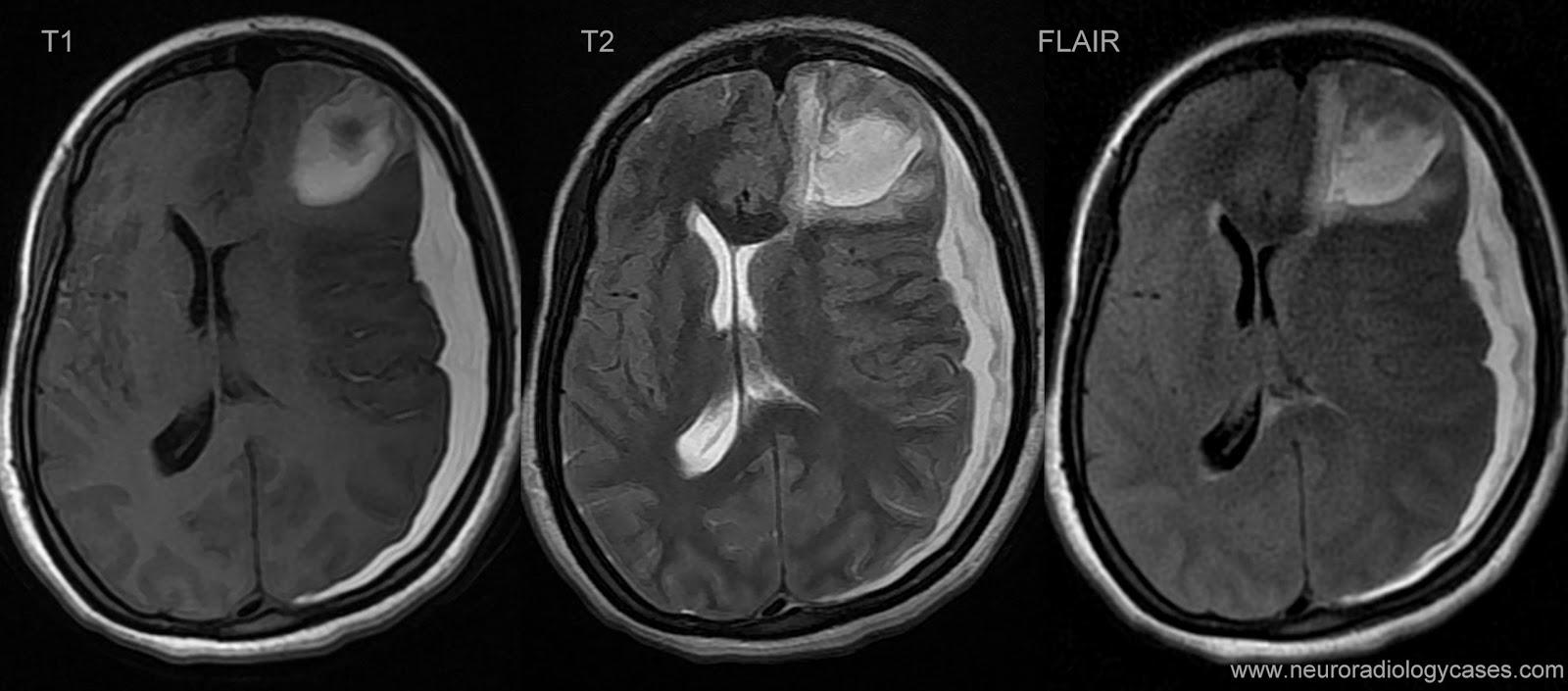 Dating subdural hematoma mri. Pediatric Radiology: The Requisites E ...