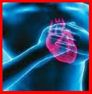 INFARTO O Infarto, Enfarte, Enfarto ou Ataque Cardíaco: