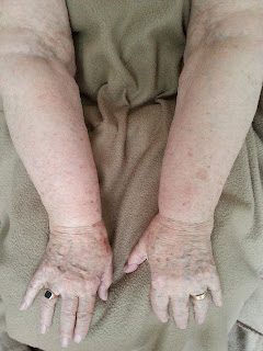 lipoedeem lip oedeem ontstaan kenmerken vocht in benen armen vet