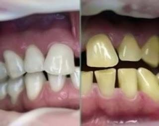 berapa daftar harga bleaching gigi di dokter jakarta