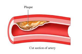 Dibujo del colesterol