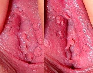 Obat kutil di bibir vagina