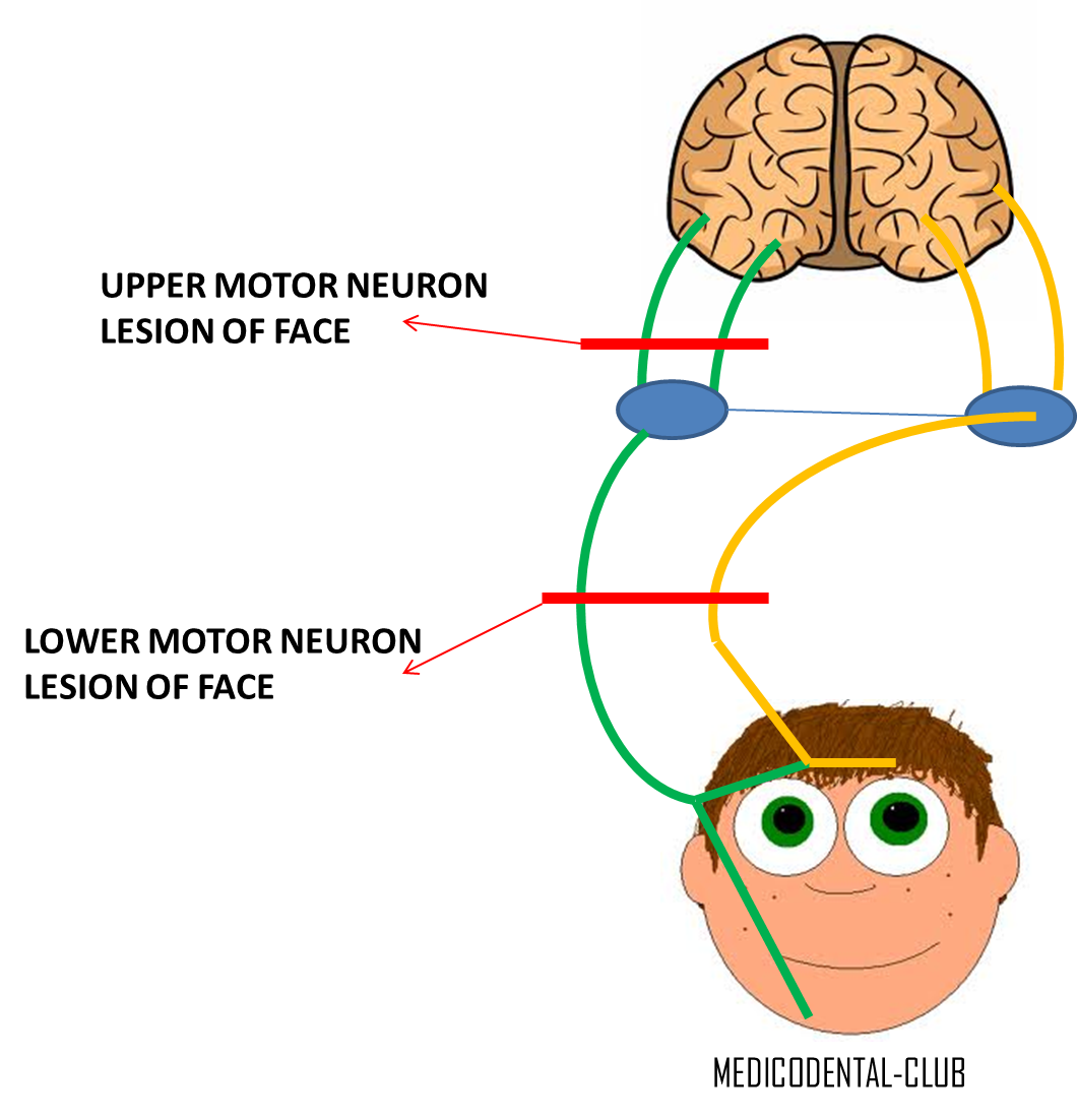 Lesion of facial nerve