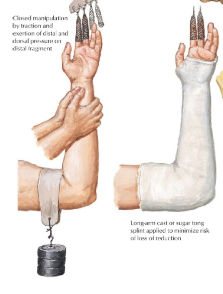 Broken Bone Healing Stages-3.bp.blogspot.com