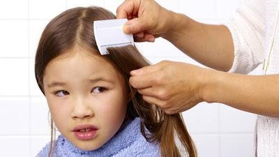 Kutu merupakan hewan benalu yang pada umumnya tinggal di rambut kepala 6 Cara Alami Menghilangkan Kutu Di Rambut