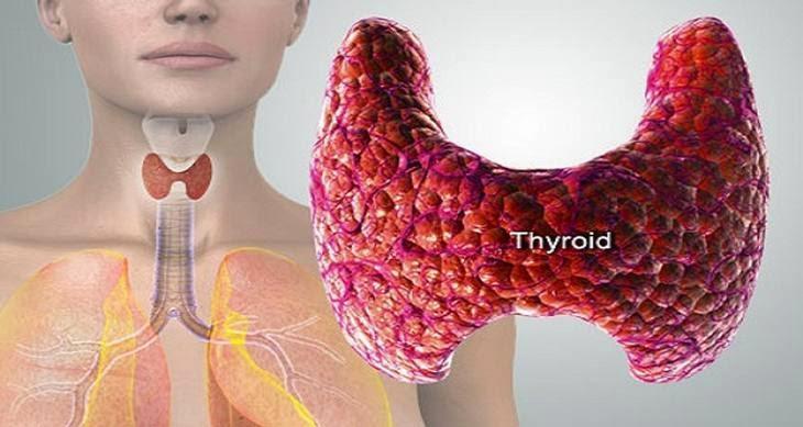 solucion natural para la gota medidor acido urico colesterol