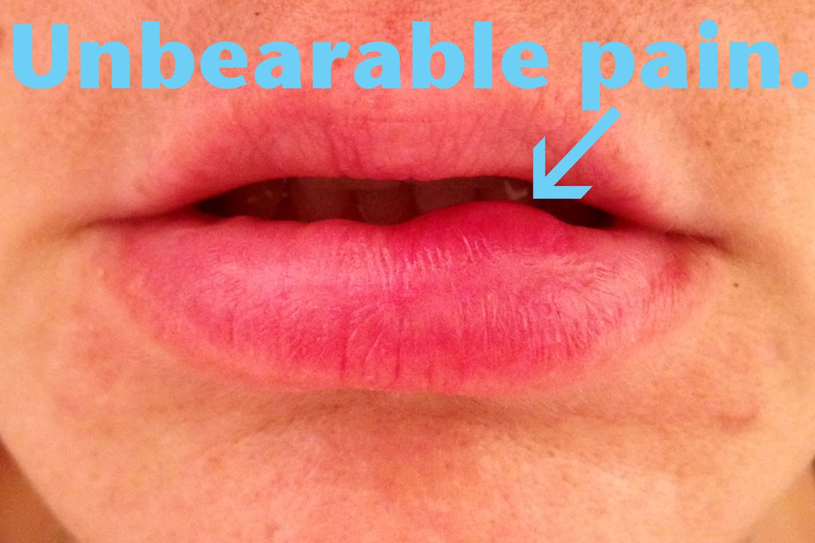 how to get rid of bumps on tongue that hurt