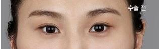 Perbaiki mata galak bersama klinik operasi plastik Wonjin