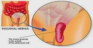penyakit hernia, Gejala penyakit hernia serta pengobatan penyakit hernia tanpa operasi