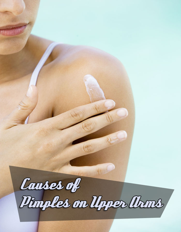 Causes of Pimples on Upper Arms
