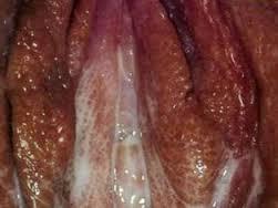 keputihan bau dan gatal