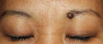 Mole on Eye brows