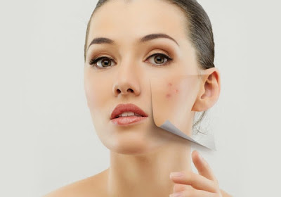 How to remove acne or pimple marks or drak spots at home?