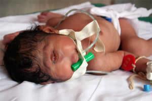 CYCLOP BABY!
