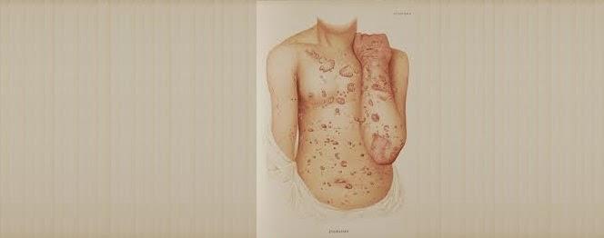 Penyebab Dan Pengobatan Penyakit Psoriasis