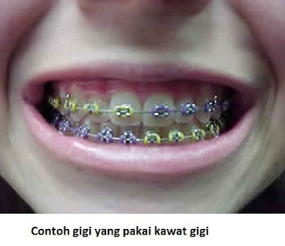 gigi berbehel