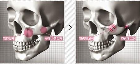 Lokasi sayatan pada operasi pengecilan tulang pipi