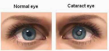CATARACTS Solution & example