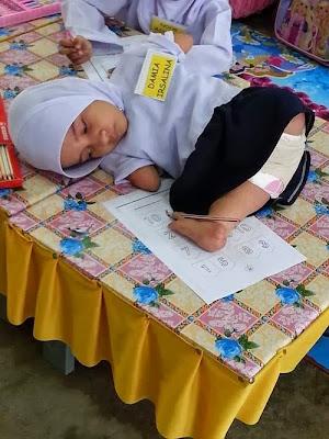 Kisah Ketabahan Adik Damia Irsalina Masuk Sekolah