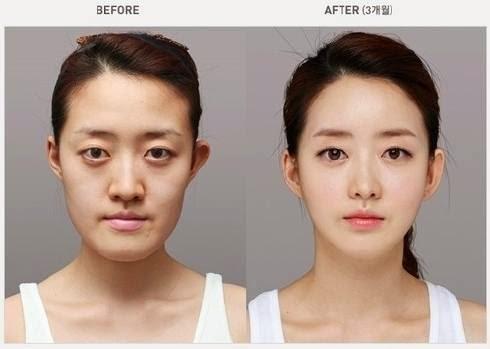 Wanita remaja mula melakukan sesuatu yang drastik untuk kelihatan cantik