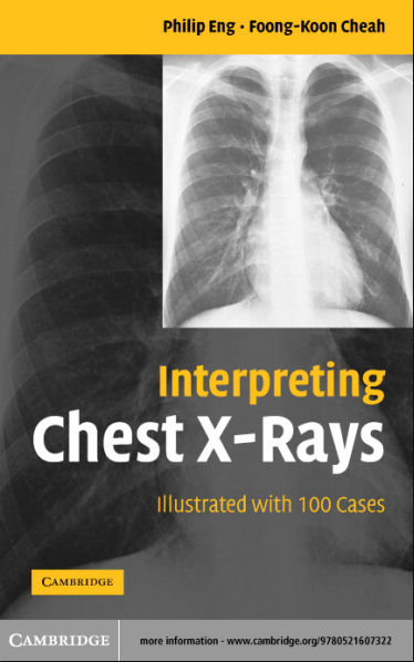 Interpreting Chest Xray