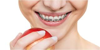 Pakai Kawat Gigi Ternyata Bikin Gigi Sensitif