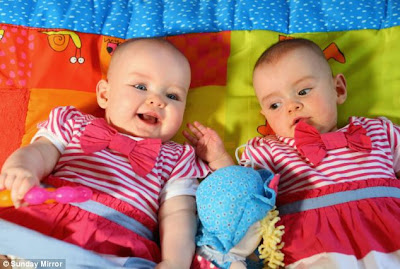 Longest Interval between birth of Twins – 87 Days Apart (Amy and Katie )