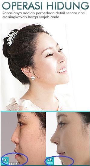 Foto Before dan After menjadi strategi Pemasaran yang cukup efektif