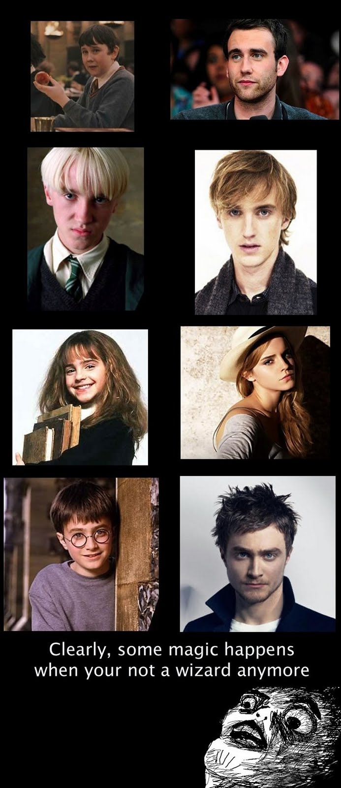The Cast Of Harry Potter - Then And Now - Clearly, Some Magic Happens When You Are Not A Wizard Anymore