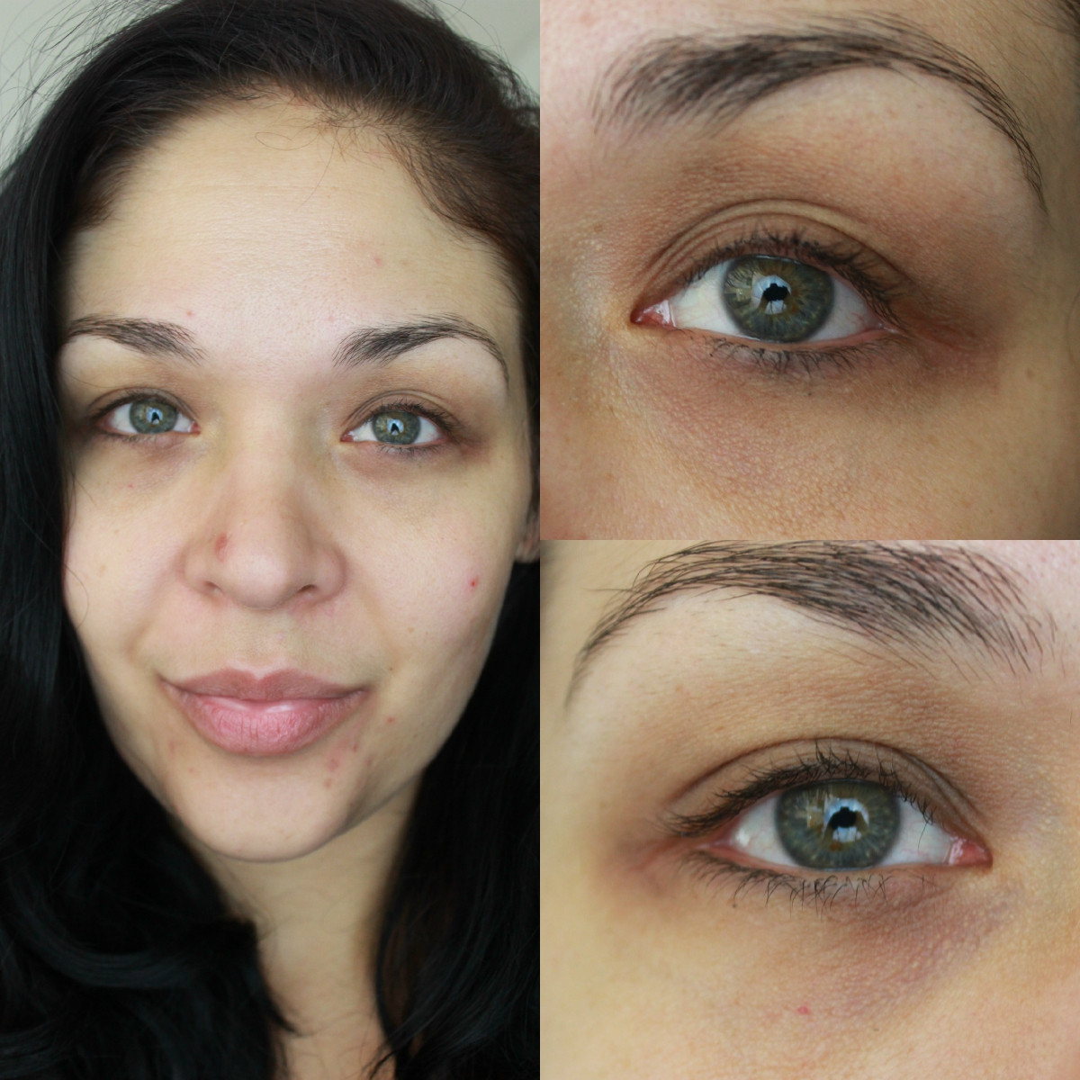 Agape Love Designs Solutions For Dark Circles Puffy Eyes Dark Spots